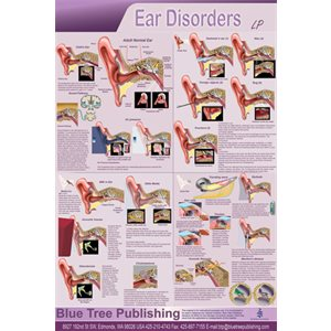 "Blue Tree Ear Disorders LP Poster (24""W x 36""H)"