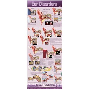 "Blue Tree Ear Disorders XLP Poster (30""W x 84""H) - Wall Hanging Version"