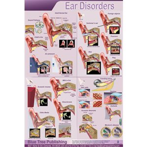 "Blue Tree Ear Disorders P Poster (12""W x 17""H)"